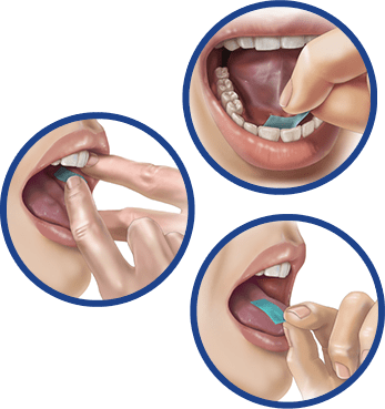 Illustration of the 3 possible routes of administration for PharmFilm®: sublingual, lingual, and buccal.
