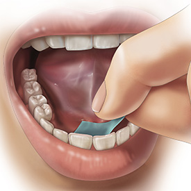 A PharmFilm® medication being applied under the tongue (sublingual delivery)